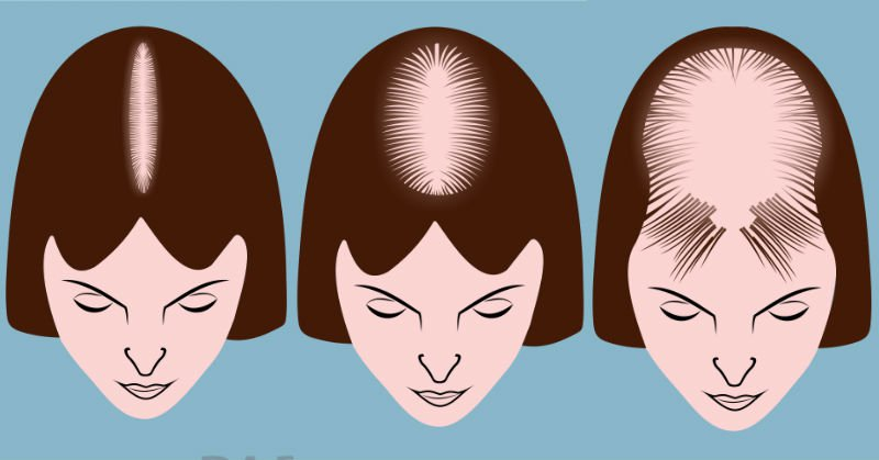 hair disorders and what they mean