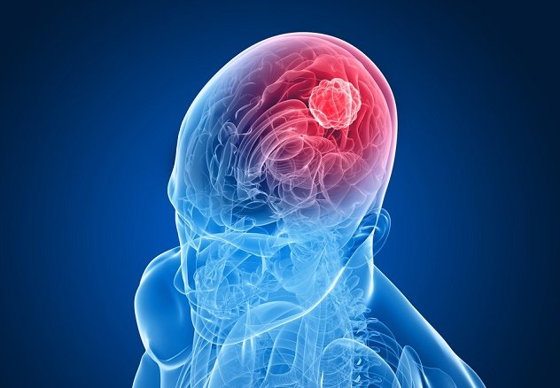 10 Early Signs of Brain Cancer