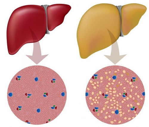 detoxify the liver and burn fat