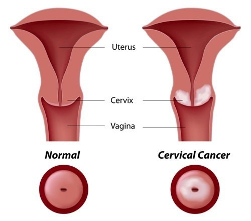 symptoms-of-cervical-cancer-2