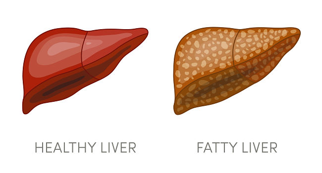 Healthy liver and diseased liver