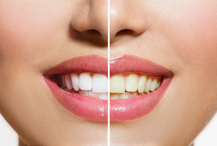 How to whiten teeth in 3 minutes