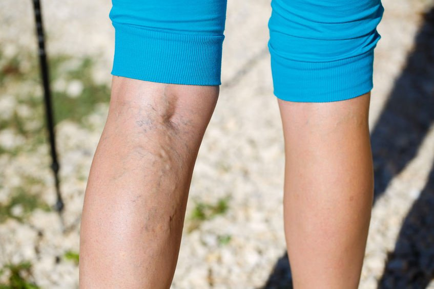 10 Home remedies for varicose and spider veins