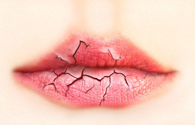 Ways to alleviate cracked lips