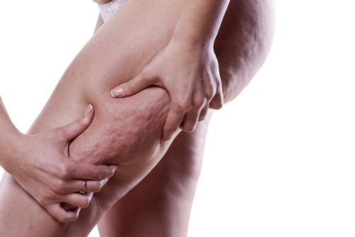 treat cellulite