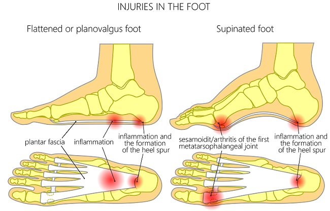Plantar Fasciitis Prevention And Treatment At Home