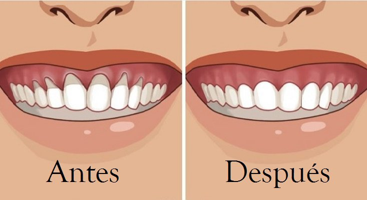 Receding gums or gingival recession Illustration