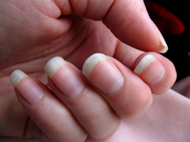 10 foods to make your nails stronger