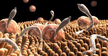 Symptoms of intestinal worms