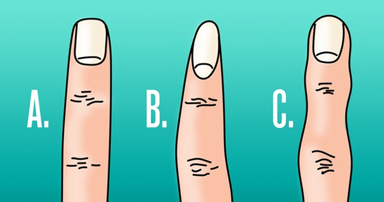 The shape of your fingers might shed some light on your health